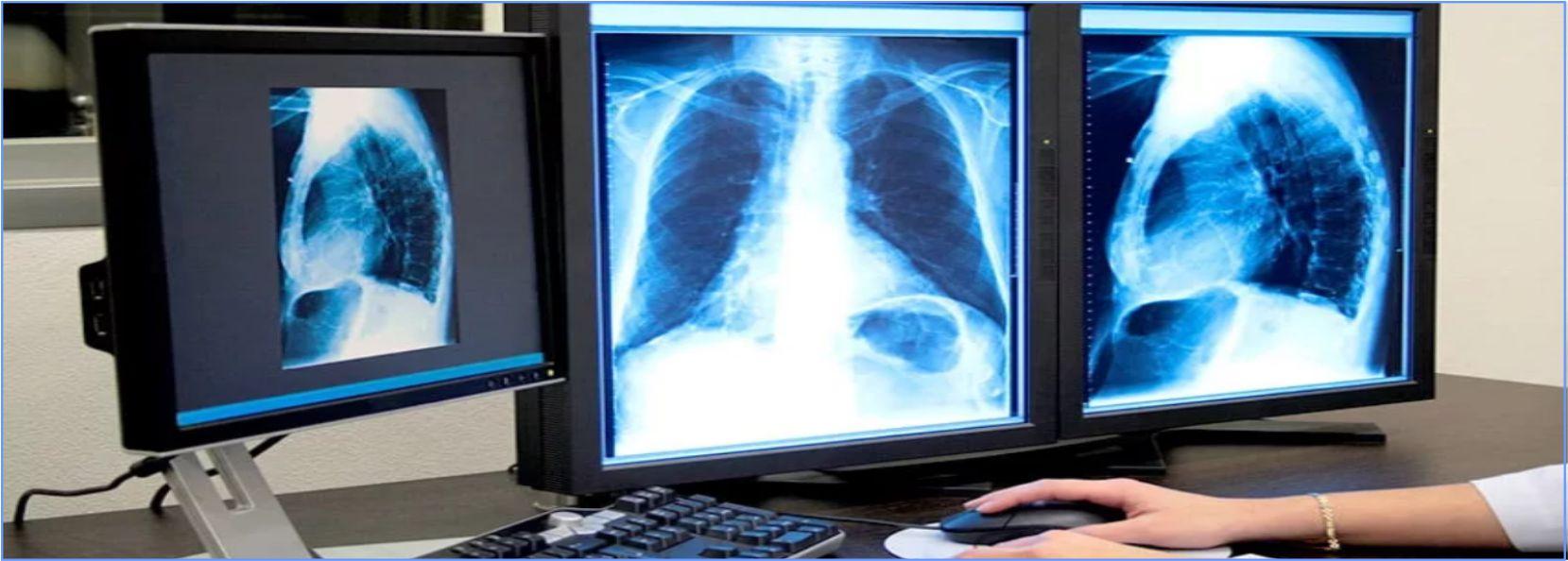 Цифровая малодозная флюрография